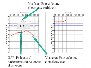 Audiometría GAP