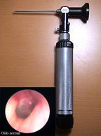 videootoendoscopia